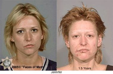Meth Addiction: Another young woman whose life was devasted by meth - before and after pictures of a young woman who became addicted to Meth